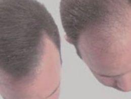 antes y después del implante capilar