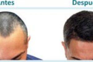 antes y después del trasplante capilar