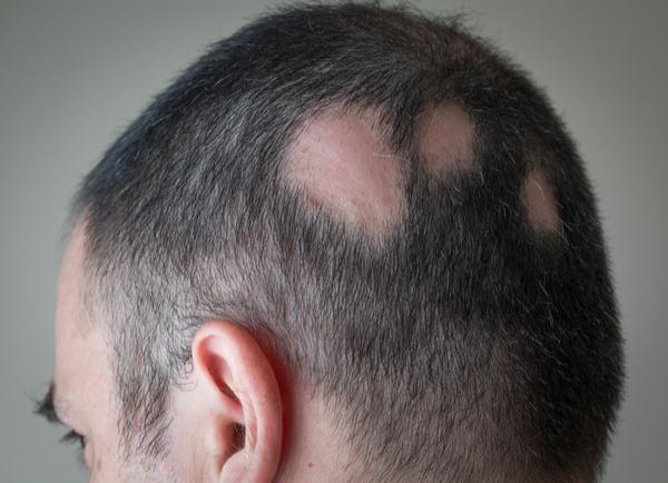 Conoce un poco más sobre la alopecia areata