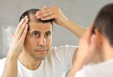 tratamientos para la caida de cabello