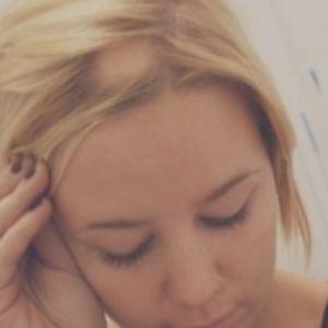 informacion sobre la alopecia