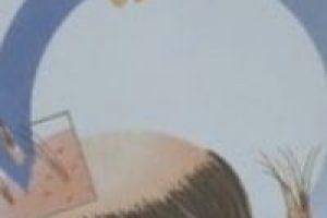 proceso del implante capilar
