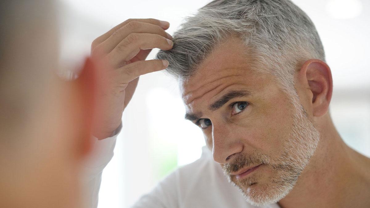 opiniones trasplante de cabello